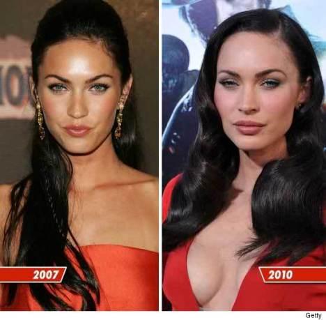 Megan-Fox-chirurgia-plastica-2